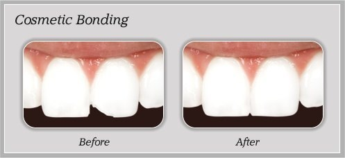 Cosmetic Bonding before and after by Douglas J. Snyder DDS, PC in Elkhart, IN